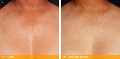 Ultherapy declottage skin tightening Dr Varano Washington DC & Virginia